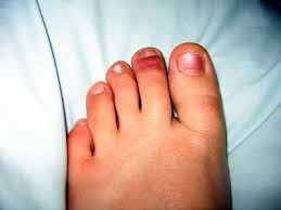 Toenail Injury Information | Foot & Ankle Specialists
