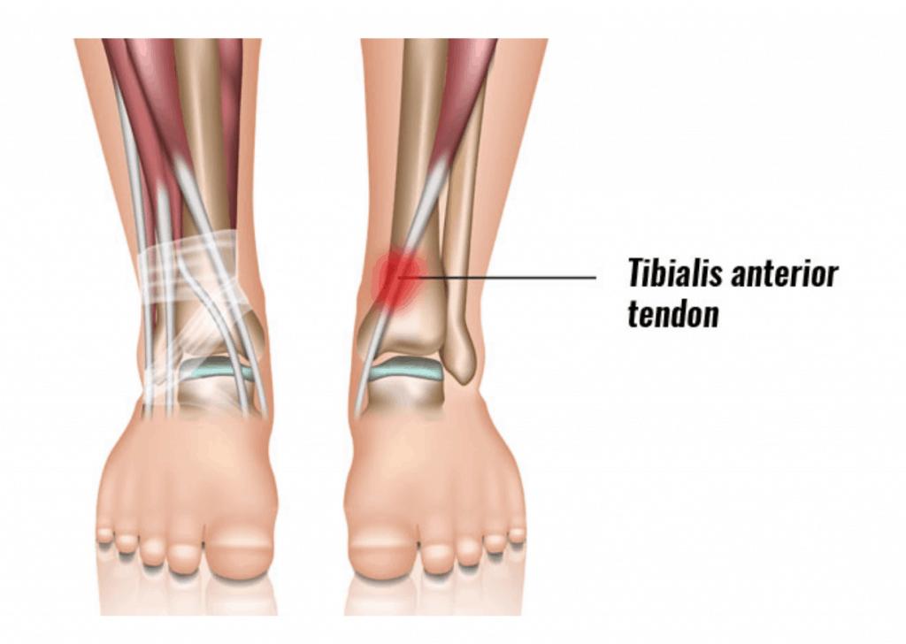 Anterior Tibial Tendonitis